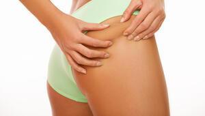 Liposuction nedir