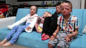 Suriyedeki savaş minik bedenlerini yaktı