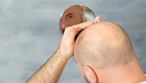 Saç ekimi kişiye özel planlanır