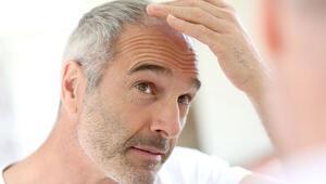 Bir modern tıp mucizesi; Saç ekimi operasyonu