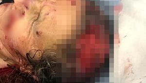 Kırşehirde köpeklerin saldırdığı kadın ağır yaralandı