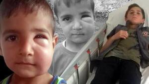 İki çocuğa arı saldırdı Köylüler: Tarlaya gitmekten korkar olduk...