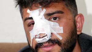 Yan bakma kavgasında yaralanan Ömerin annesi: İzlediğim benim çocuğummuş
