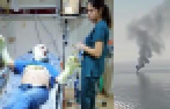 MHP İlçe Başkanı teknede çıkan yangında yaralandı