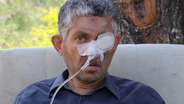 Dehşete düşüren iddia! Dişi çekildi, gözünü kaybetti...