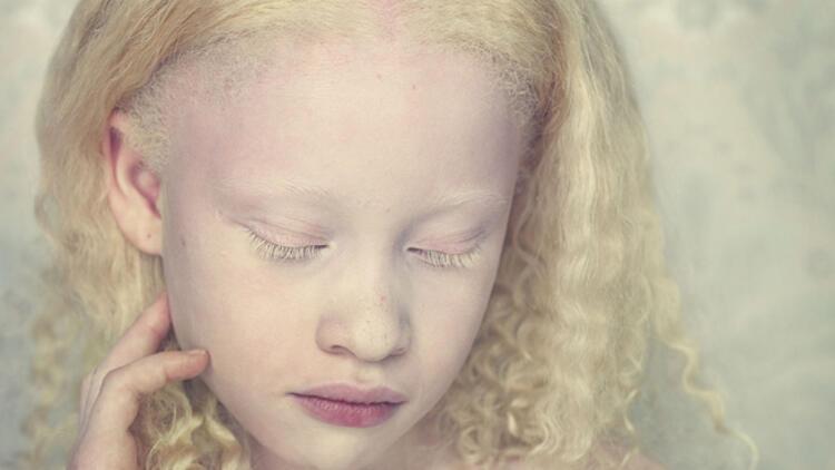 Albino (albinizm) nedir? Albino hastalığı genetik mi?